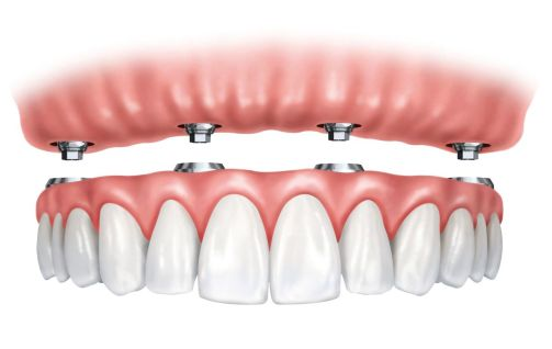 Implant supported Denture, All-on-4, Fixed Denture
