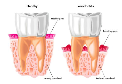 Periodontal Surgery at Batavia & Geneva