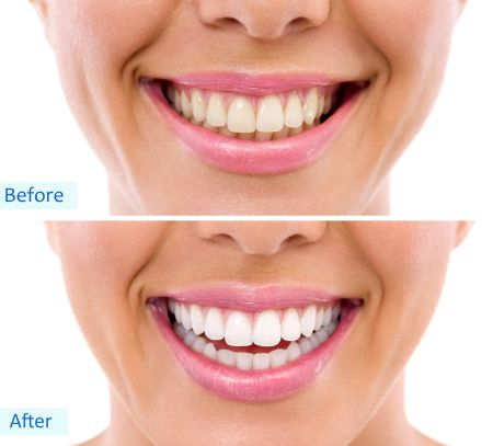 Batavia dentist offers teeth whitening